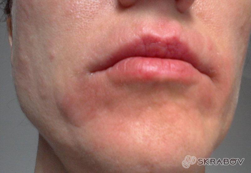 Сухая кожа лица и шелушение - что делать? 15-2