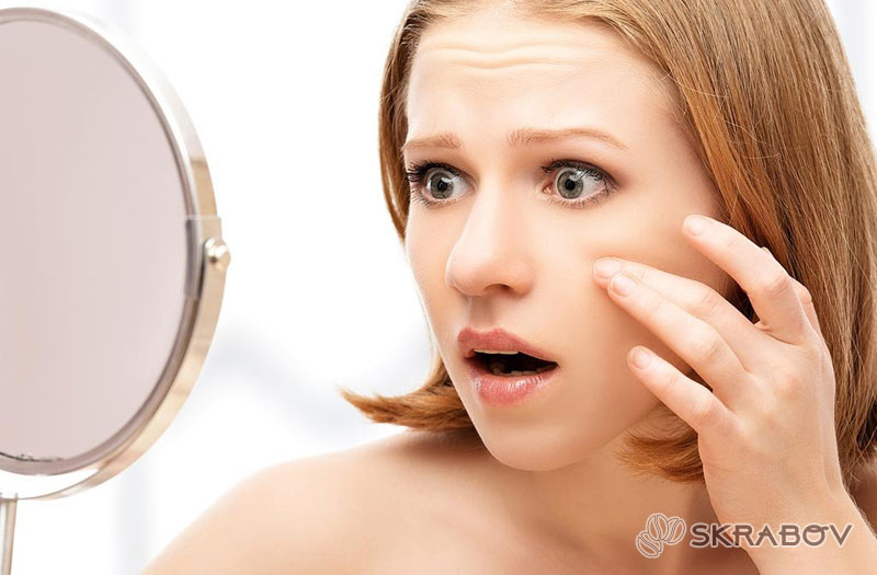 Можно ли выдавливать черные точки на носу: опасения и рекомендации 8-5